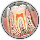 Root Canal Treatment Thorndale
