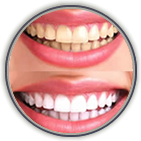 Teeth Whitening Thorndale